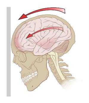 concussion, headache, migraine