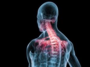 Spinal Arthritis, Neck Pain, Neck Ache, Osteoarthritis, Disc Disease, Joint Disease
